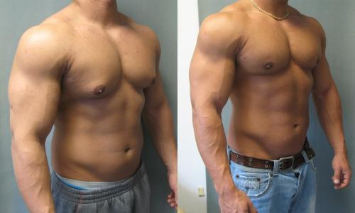 Left: Wet Off season, fat and subsequent fat on chest Right: leaner and the breast tissue is gone this is normal gyno not real steroid induced gyno despite he likely is on steroids. this is how a dirty wet bulk will look even when done right